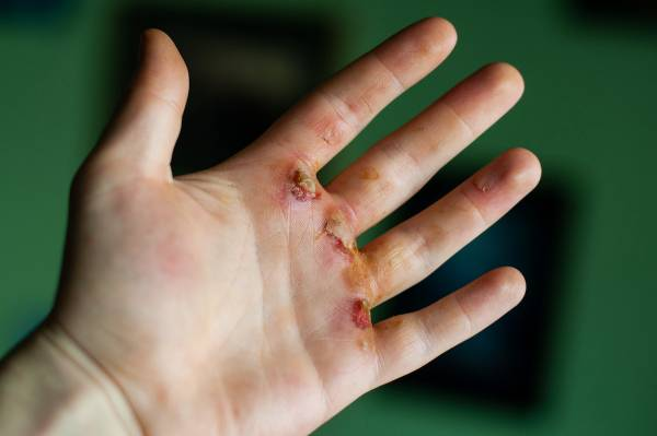 Are Ripped Hands Still Cool in CrossFit? - Fitness, crossfit, crossfit games, chalk, crossfit open, liquid chalk, callouses, ripped hands, barbell knurl, gymnastic straps